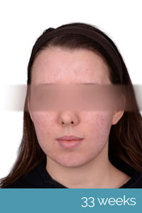 Photo showing clearer skin after 33 weeks.