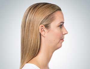 Photo of patient with small double chin before treatment available in Fremantle